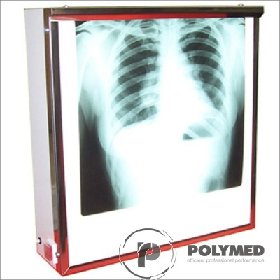 Negatoscop de perete Slim - Polymed