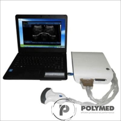 Ecograf portabil alb/negru UBox 10 - Polymed